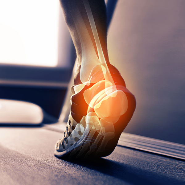 Foot & Ankle Surgeons in Tucson