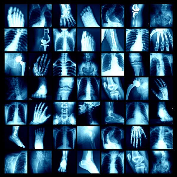 Tucson Orthopaedic Imaging